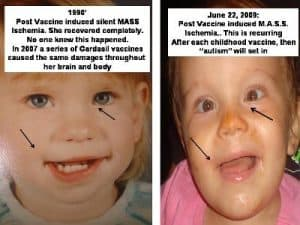 vaccine damage ischemia