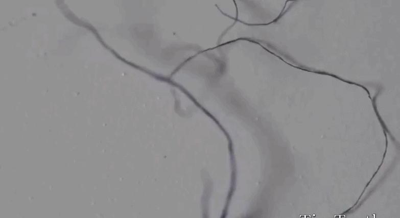 mask fibers